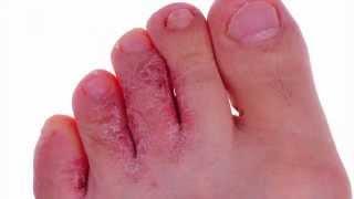 DR. OZ - Mengatasi Kaki Yang Iritasi Karena Sepatu Basah.