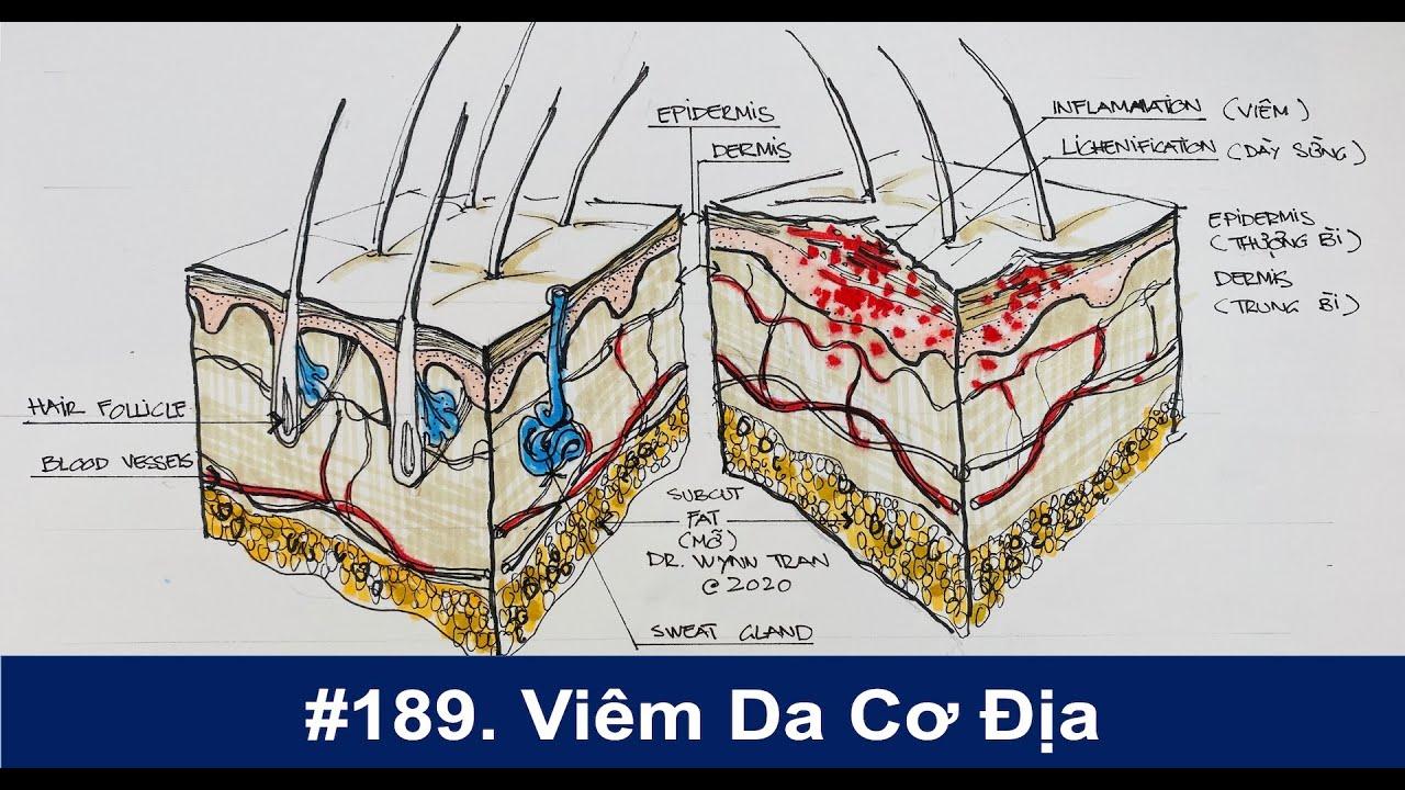 #189. Viêm da cơ địa chữa trị thế nào?