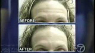 a thermage facelift no surgery just results