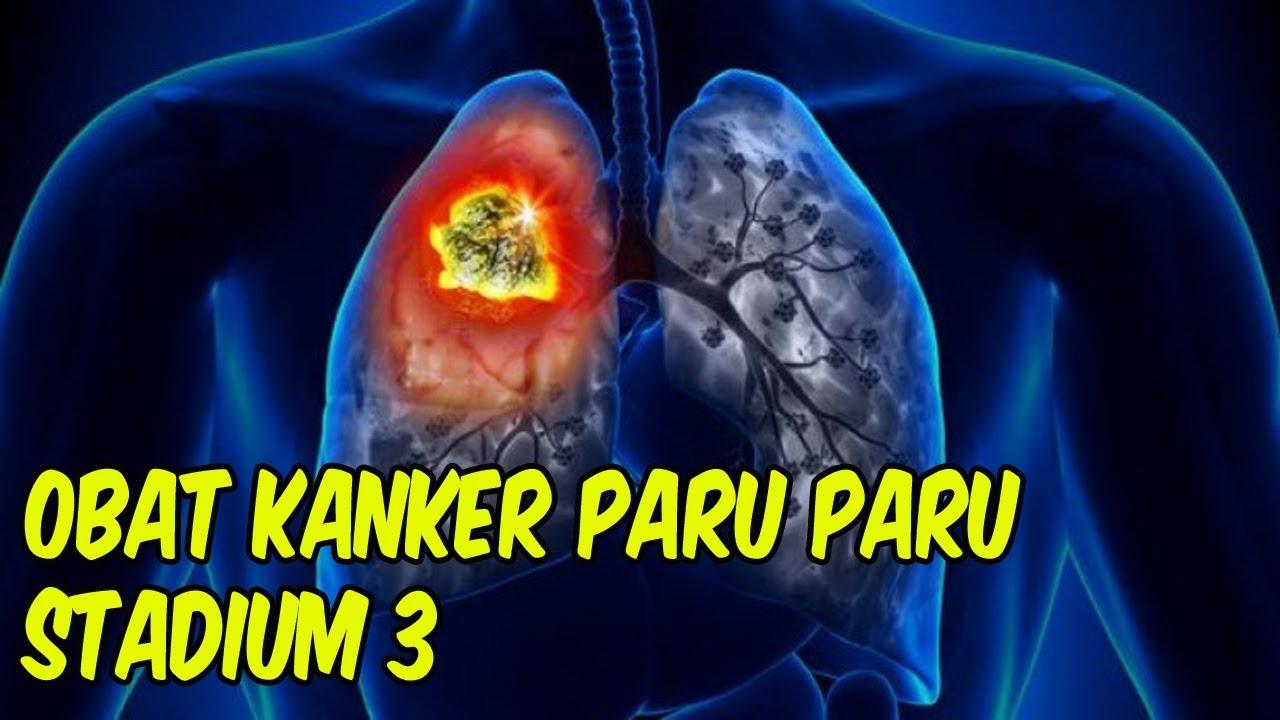 obat kanker paru paru stadium 3 - YouTube