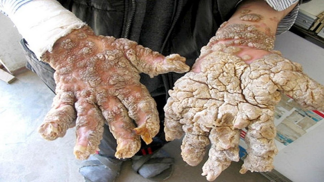 фото кожные болезни человека