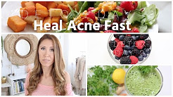 hqdefault - Foods Cure Acne Fast