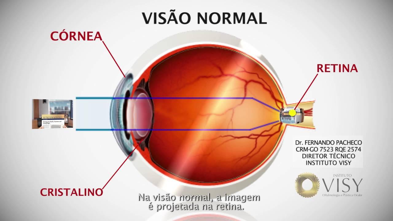 explosión de vasos sanguíneos en diabetes ocular
