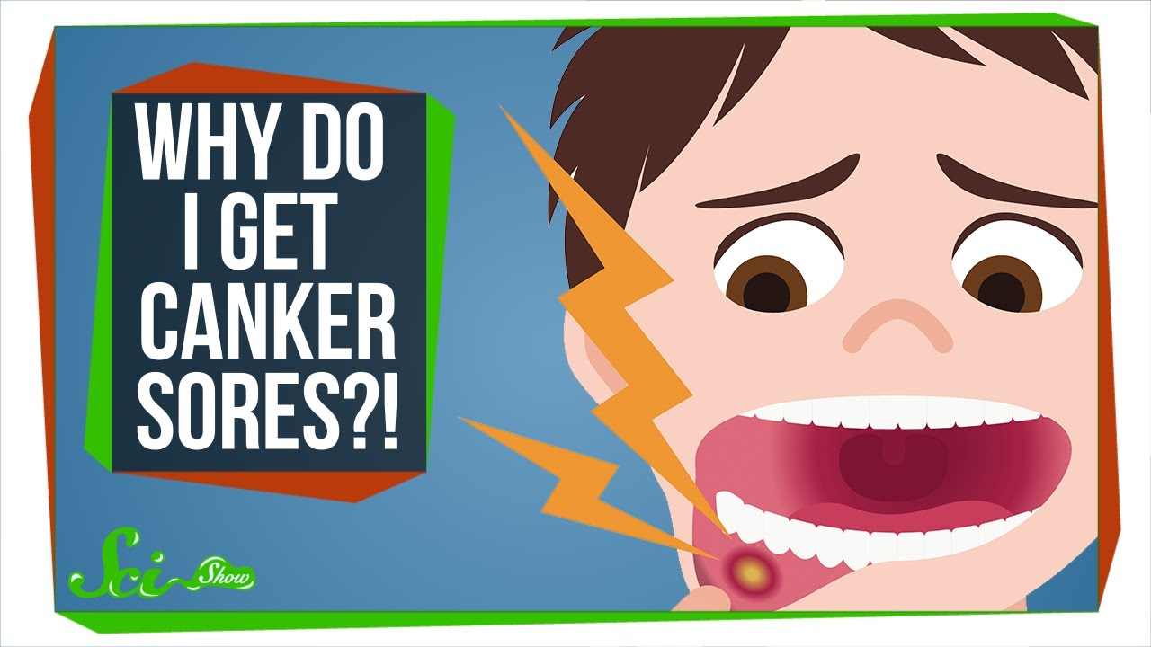 How Do You Get Rid of a Canker Sore