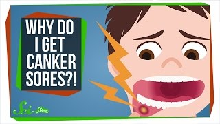 Gambar cover How Do You Get Rid of a Canker Sore?