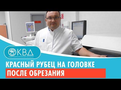 😯 Красный рубец на головке после обрезания. Клинический случай №566