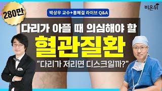 [메디텔]  다리가 아플때 의심해야 할 혈관질환-건국대병원 팔다리혈관센터장 박상우 교수