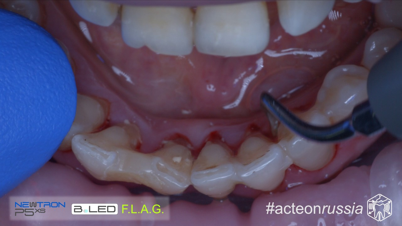агентств недвижимости анастезия при чистки зубного камня через определённое