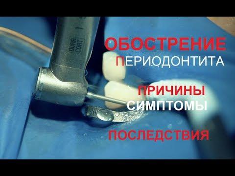Периодонтит может привести к образованию кисты при обострении