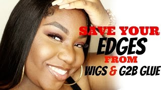 NEW WAY TO SAVE YOUR EDGES FROM WIGS AND GOT 2 BE GLUE || CAP METHOD