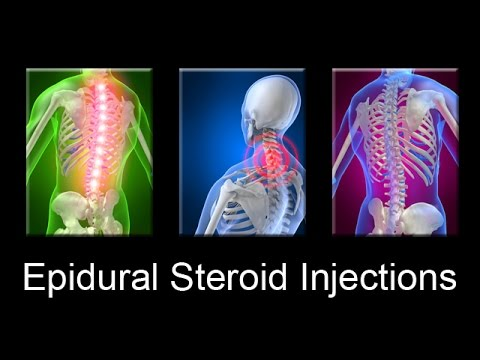 Epidural Steroid Injections are Dangerous for Neck & Back Pain Relief -- Dr Mandell