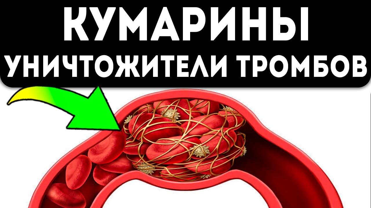 Жидкая кровь без синяков! Вот что творит кумарин с организмом