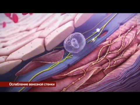 Фильм о патологии венозной системы