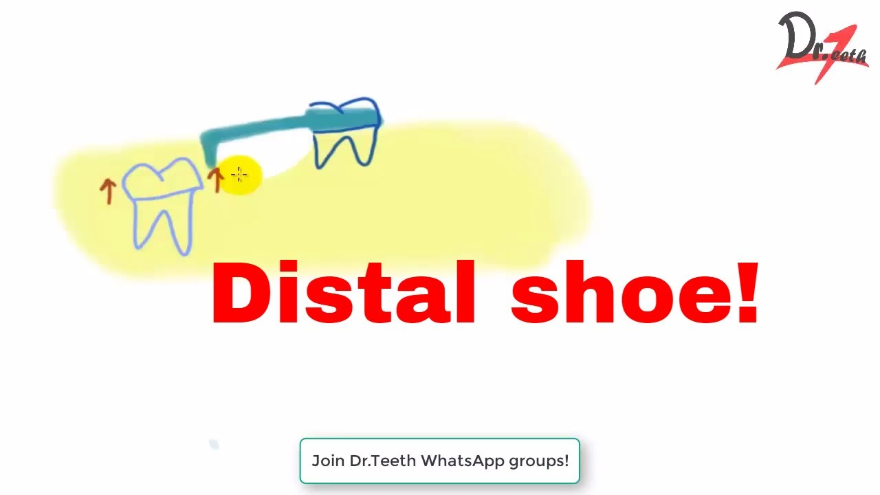 Distal shoe space maintainer : What, where and how? on