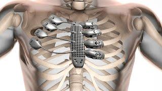 #شيء_تك: قفص صدري لمريض بالسرطان بتقنية الطباعة ثلاثية الأبعاد