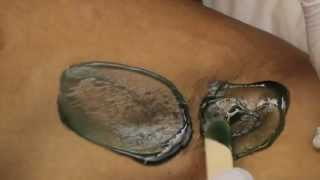 Repeat youtube video Male Hair Removal-Underarm Waxing for Men in New York (Cirepil Hard Wax) Sensitive Skin