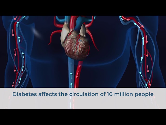 Diabetes Affects More Than Circulation