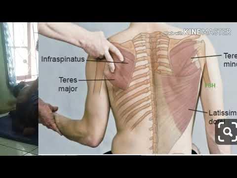 pengobatan syaraf kejepit tulang belakang Baru