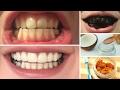 DIY 10 Home Remedies To Whiten Teeth