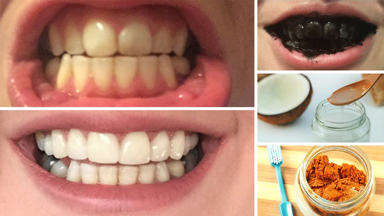 Diy 10 Home Remedies To Whiten Teeth Youtube