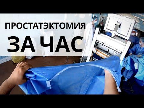 Лапароскопическая простатэктомия за час // full time // от первого лица