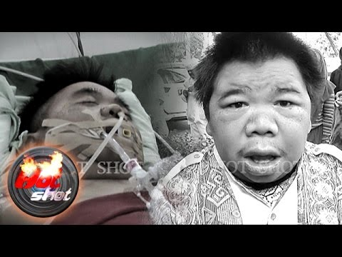 Hendrik Ceper Meninggal Dunia Pasca Koma - Hot Shot 03 Juli 2016