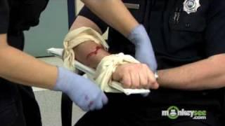 How to Splint a Broken Arm