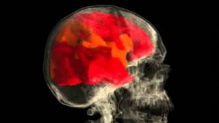 Женский оргазм - съемка активности мозга