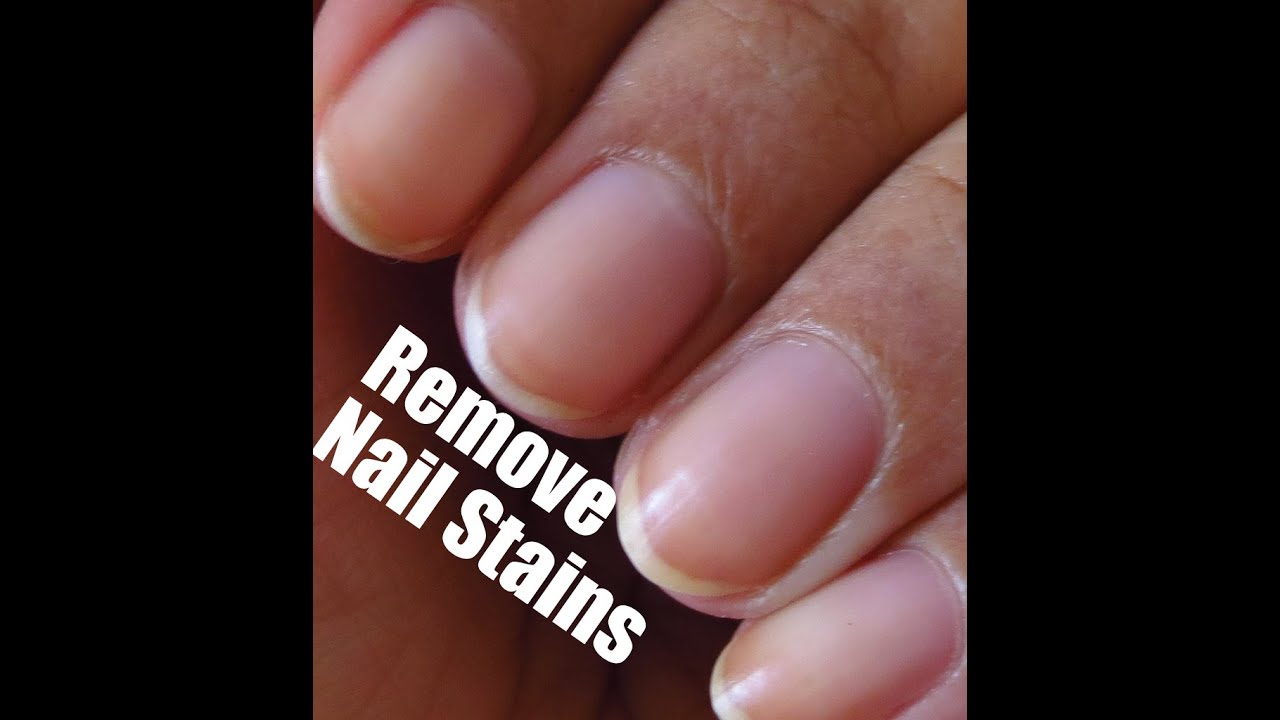 TIPS : Remove Nail Polish & Yellow Stains & Get White Nails ...
