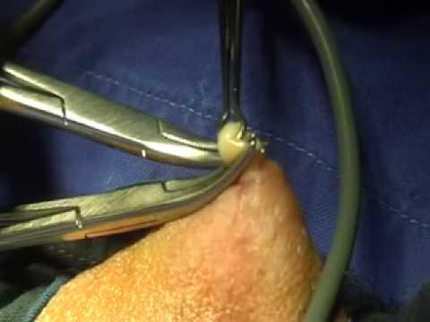 vasektomie berlin urroxx gmbh - YouTube