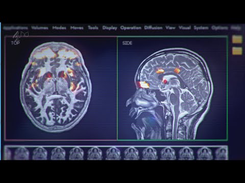 What are the effects of porn on the brain