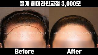 헤어라인교정 수술 후기   절개 헤어라인교정 3,000…