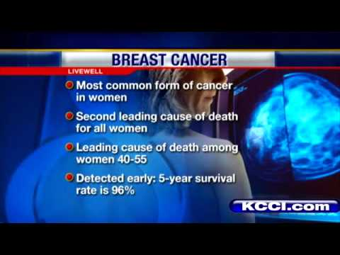 mammograms how important are they The facts about mammography screening: md on behalf of the society of breast imaging professor of radiology harvard medical school senior radiologist breast imaging division for women ages 50 to 74 they directed that they should have mammograms every two years instead of.