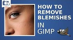 hqdefault - How Do You Remove Pimples On Gimp