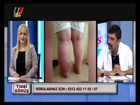 Prof. Dr. Ahmet Akgül Ile LENFÖDEM / FİL HASTALIĞI Hakkında Herşey...