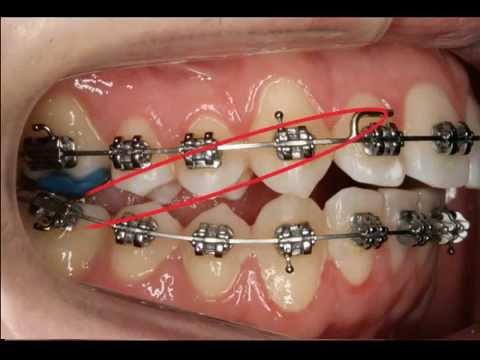 Uso De Los Elásticos En Ortodoncia Fija Youtube