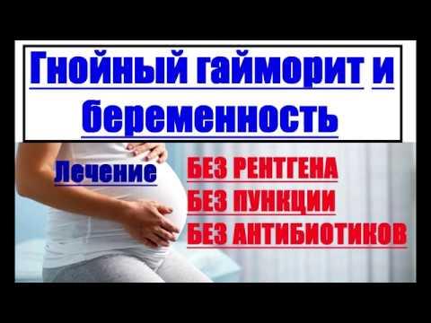 Гнойный гайморит и беременность.