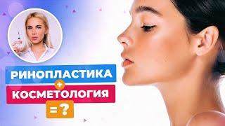 Ринопластика без операции или контурная пластика носа || Отзыв Татьяны Кушниренко