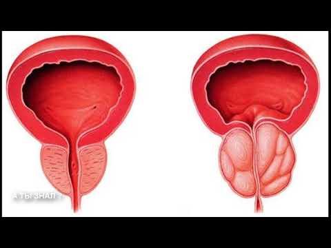 ПРОСТАТИТ и  АДЕНОМА / причины развития простатита и аденомы  / лечение народным средством