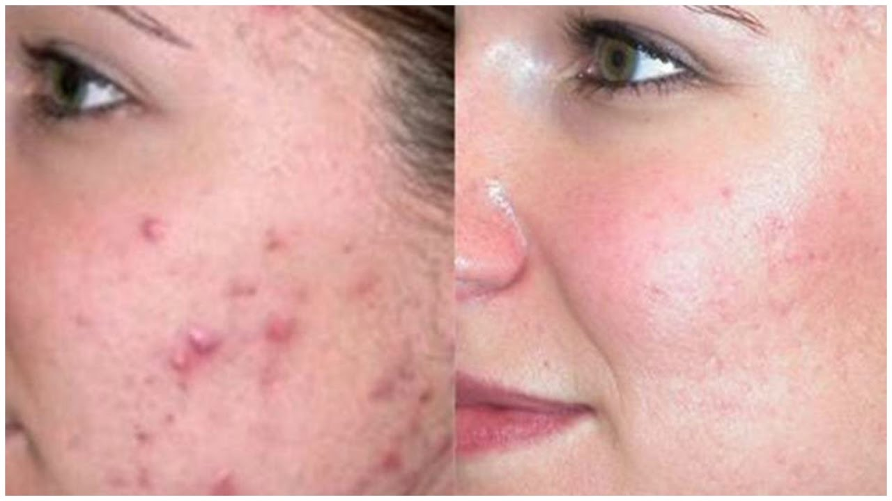 how to stop a pimple from growing overnight