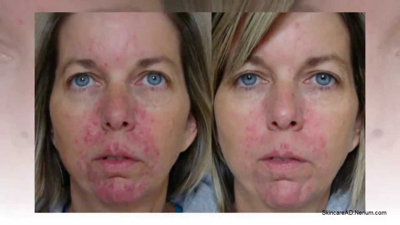 Nerium before after pictures and