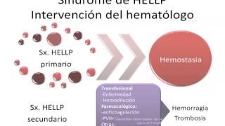 """Sesión Académica NOV 2013 """"Sindrome de Hellp"""" 4"""