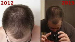 Hairloss Update - Part 14 - 2012 and 2015 Picture Comparisons