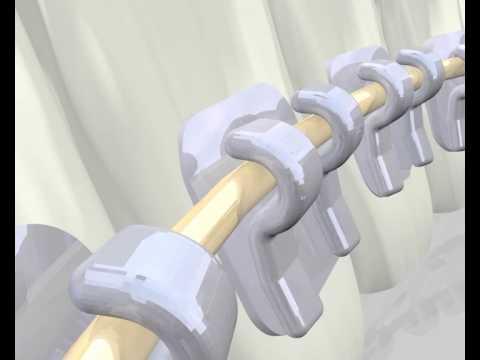 「orthodontics 2D」の画像検索結果
