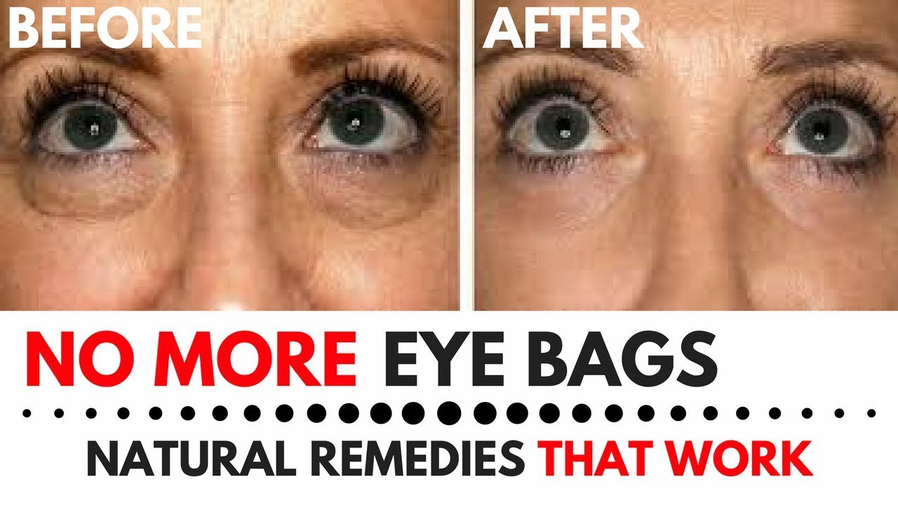 Treatment For Under Eye Bags