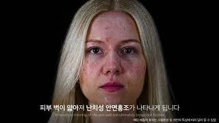 안면홍조 원인, 비약물 비시술 손상 개선 솔루션 #캐필…