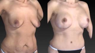 Mommy Makeover 3D Before and After-06