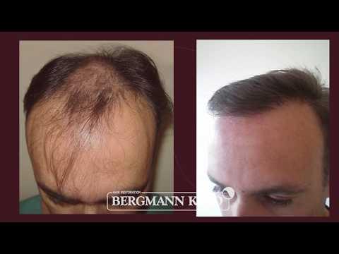 Hair Transplantation by Bergmann Kord  – Results – 003