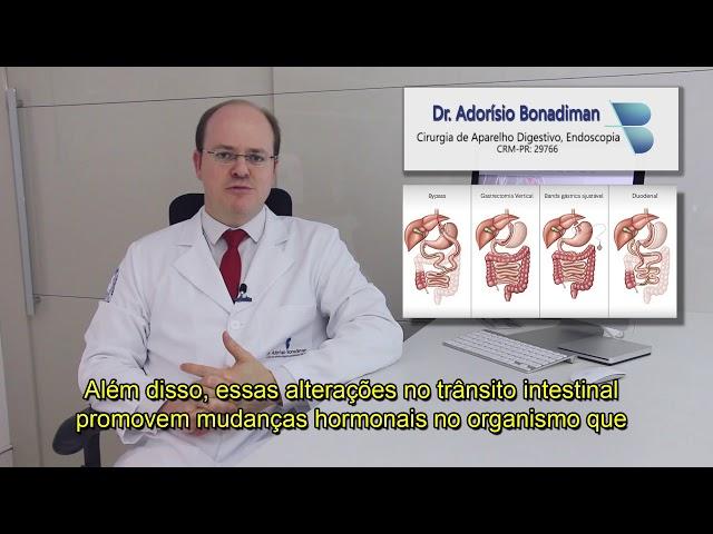 Dr. Adorísio Bonadiman / Cirurgia Bariátrica