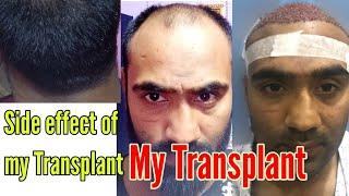 Hair Transplant || मेरे Transpant के side effect  || Aapke Question के जवाब ||